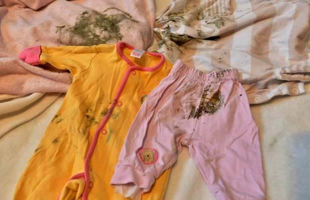 como quitar el moho de la ropa